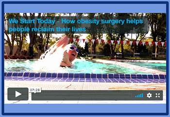 Motivational video on Obesity Surgery